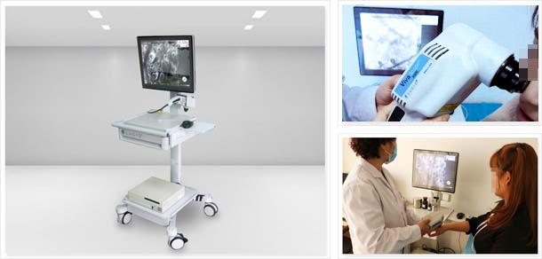 美国三维皮肤CT,稳定期、大面积白癜风患者优选